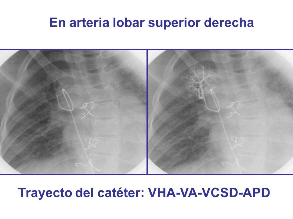 En arteria lobar superior derecha Trayecto del catéter: VHA-VA-VCSD-APD