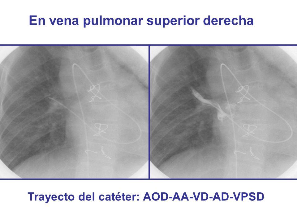 En vena pulmonar superior derecha Trayecto del catéter: AOD-AA-VD-AD-VPSD