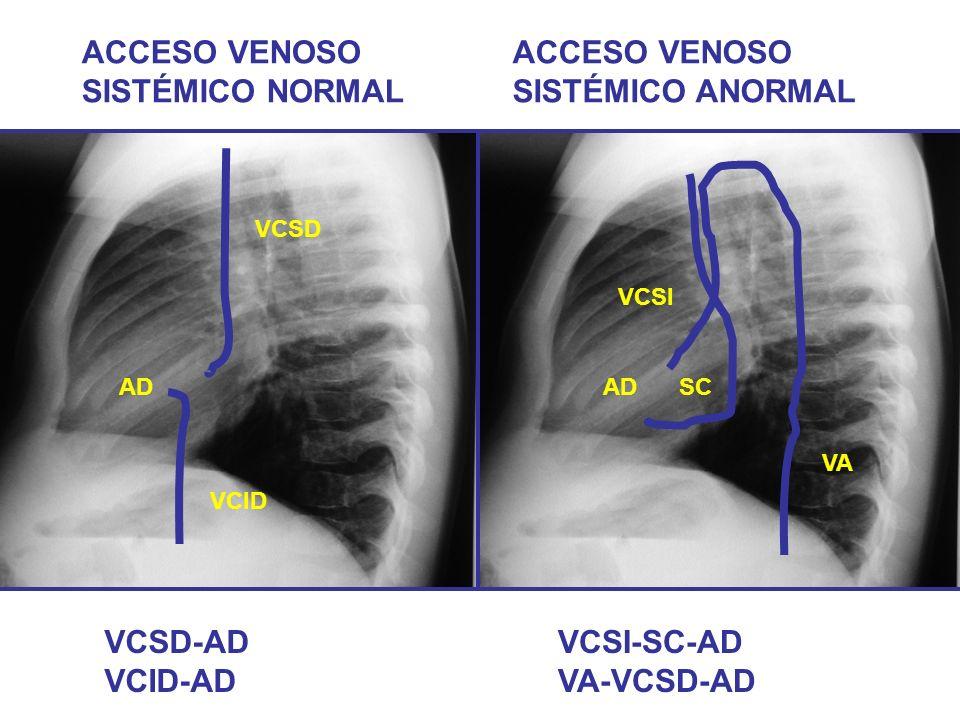 VCSD VCID ACCESO VENOSO SISTÉMICO NORMAL ACCESO VENOSO SISTÉMICO ANORMAL VA AD VCSI SCAD VCSD-AD VCID-AD VCSI-SC-AD VA-VCSD-AD