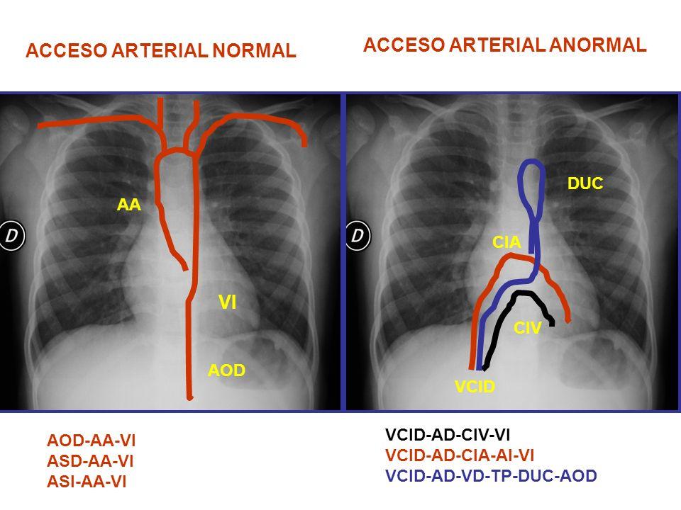 ACCESO ARTERIAL NORMAL VI AOD AA AOD-AA-VI ASD-AA-VI ASI-AA-VI ACCESO ARTERIAL ANORMAL CIA CIV VCID DUC VCID-AD-CIV-VI VCID-AD-CIA-AI-VI VCID-AD-VD-TP