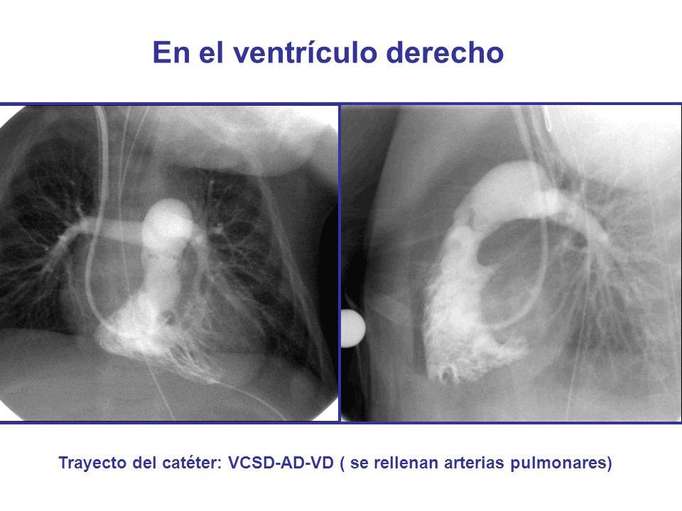 En el ventrículo derecho Trayecto del catéter: VCSD-AD-VD ( se rellenan arterias pulmonares)