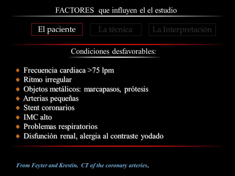 FACTORES que influyen el el estudio Condiciones desfavorables: Frecuencia cardiaca >75 lpm Ritmo irregular Ritmo irregular Objetos metálicos: marcapas
