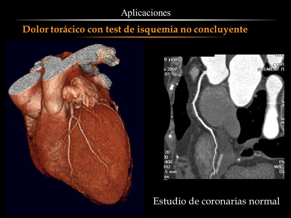 Dolor torácico con test de isquemia no concluyente Estudio de coronarias normal