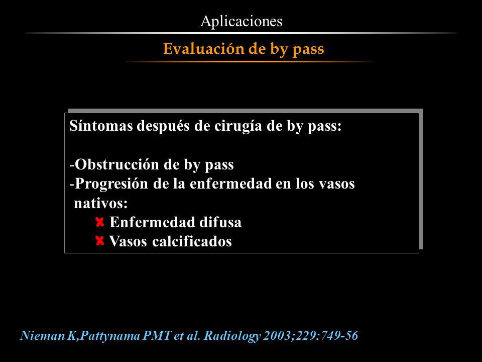 Aplicaciones Síntomas después de cirugía de by pass: -Obstrucción de by pass -Progresión de la enfermedad en los vasos nativos: Enfermedad difusa Vaso