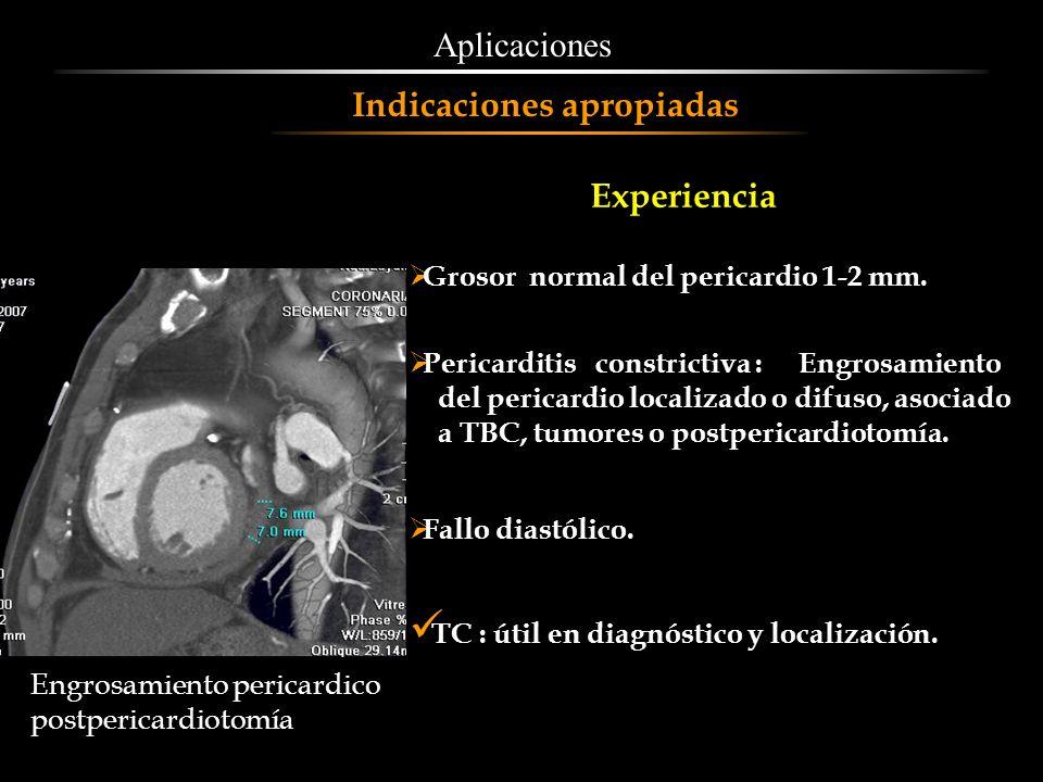 Grosor normal del pericardio 1-2 mm. Pericarditis constrictiva : Engrosamiento del pericardio localizado o difuso, asociado a TBC, tumores o postperic
