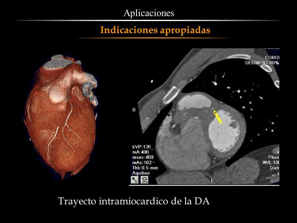Aplicaciones Indicaciones apropiadas Trayecto intramiocardico de la DA