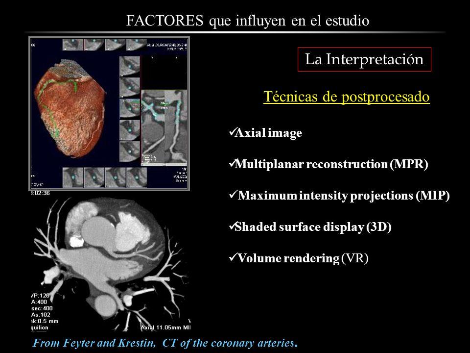Aplicaciones Detección de enfermedad coronaria 15 casos de dolor torácico con test de esfuerzo no realizable o no concluyente Probabilidad pre-prueba baja o intermedia 9 mujeres, edad media 55 + 9 años.