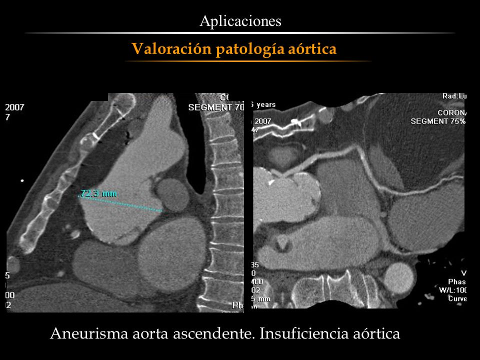 Aplicaciones Valoración patología aórtica Aneurisma aorta ascendente. Insuficiencia aórtica