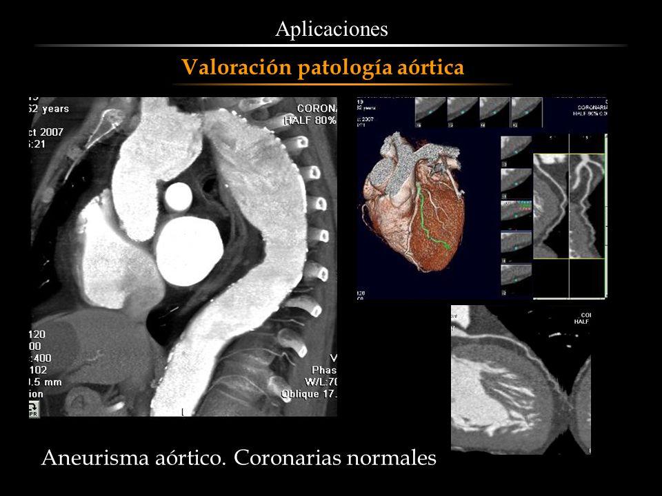 Aplicaciones Valoración patología aórtica Aneurisma aórtico. Coronarias normales