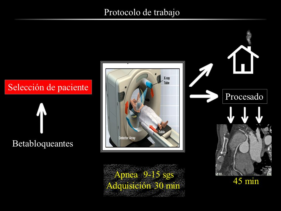 Protocolo de trabajo Selección de paciente Betabloqueantes Apnea 9-15 sgs Adquisición 30 min Procesado 45 min
