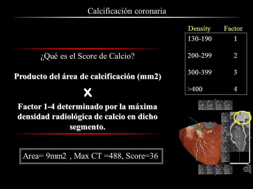 ¿Qué es el Score de Calcio? Producto del área de calcificación (mm2) Factor 1-4 determinado por la máxima densidad radiológica de calcio en dicho segm
