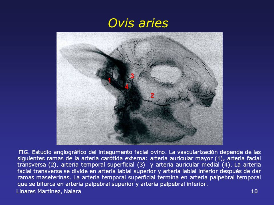 Linares Martínez, Naiara10 FIG. Estudio angiográfico del integumento facial ovino. La vascularización depende de las siguientes ramas de la arteria ca