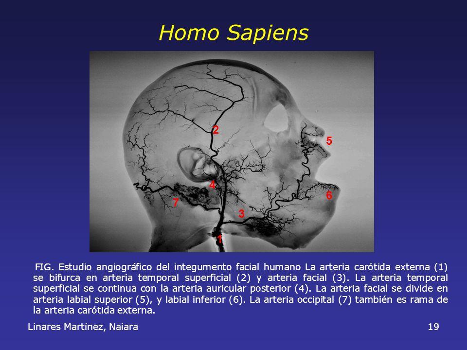 Linares Martínez, Naiara19 FIG. Estudio angiográfico del integumento facial humano La arteria carótida externa (1) se bifurca en arteria temporal supe