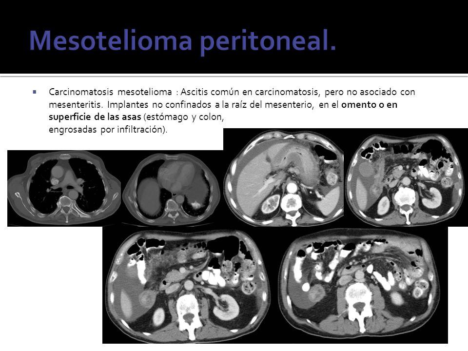 Carcinomatosis mesotelioma : Ascitis común en carcinomatosis, pero no asociado con mesenteritis. Implantes no confinados a la raíz del mesenterio, en