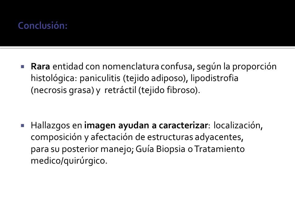 Rara entidad con nomenclatura confusa, según la proporción histológica: paniculitis (tejido adiposo), lipodistrofia (necrosis grasa) y retráctil (teji