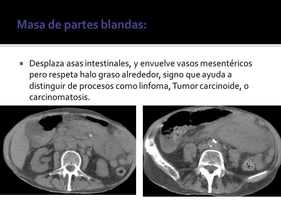 Desplaza asas intestinales, y envuelve vasos mesentéricos pero respeta halo graso alrededor, signo que ayuda a distinguir de procesos como linfoma, Tu
