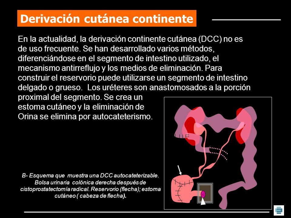 Derivación cutánea continente En la actualidad, la derivación continente cutánea (DCC) no es de uso frecuente. Se han desarrollado varios métodos, dif