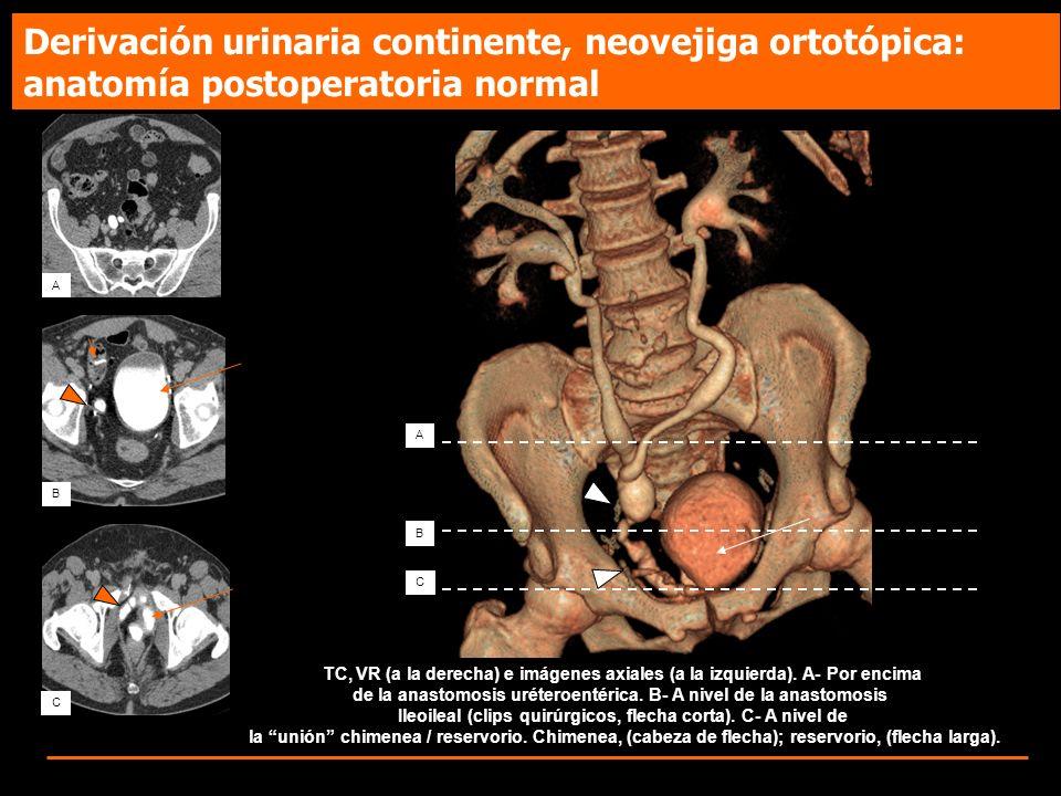A B C TC, VR (a la derecha) e imágenes axiales (a la izquierda). A- Por encima de la anastomosis uréteroentérica. B- A nivel de la anastomosis Ileoile