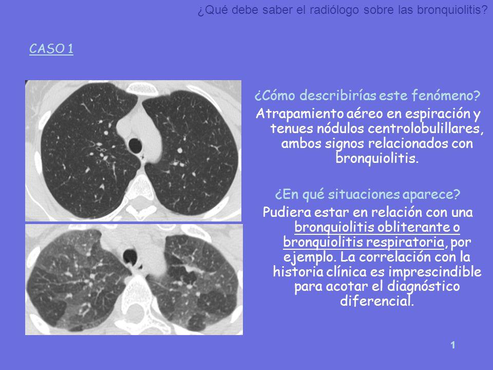 1 ¿Cómo describirías este fenómeno? Atrapamiento aéreo en espiración y tenues nódulos centrolobulillares, ambos signos relacionados con bronquiolitis.