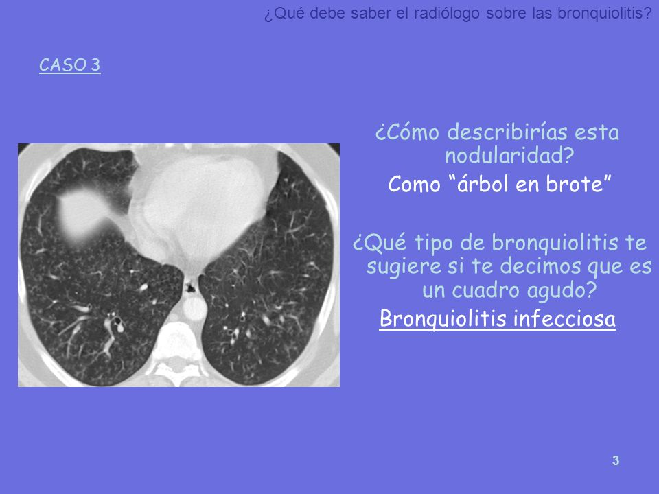 3 ¿Cómo describirías esta nodularidad? Como árbol en brote ¿Qué tipo de bronquiolitis te sugiere si te decimos que es un cuadro agudo? Bronquiolitis i