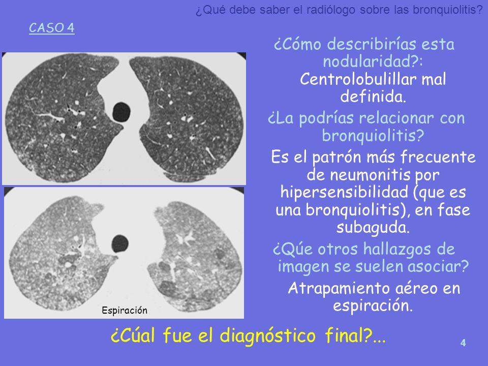 4 ¿Cómo describirías esta nodularidad?: Centrolobulillar mal definida. ¿La podrías relacionar con bronquiolitis? Es el patrón más frecuente de neumoni