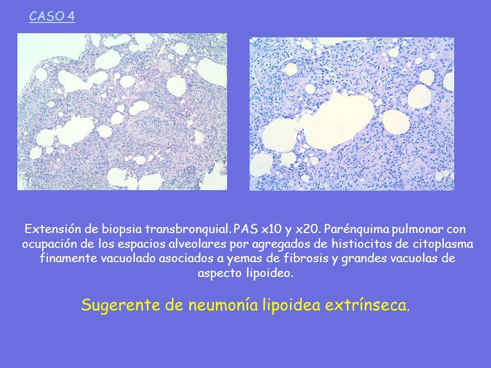 Extensión de biopsia transbronquial. PAS x10 y x20. Parénquima pulmonar con ocupación de los espacios alveolares por agregados de histiocitos de citop