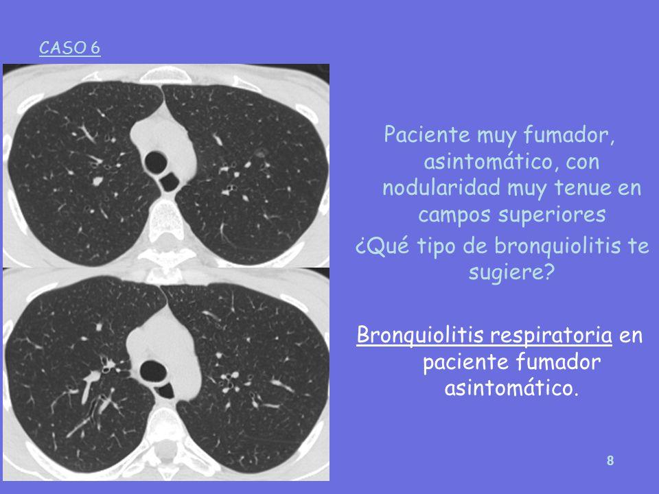 8 Paciente muy fumador, asintomático, con nodularidad muy tenue en campos superiores ¿Qué tipo de bronquiolitis te sugiere? Bronquiolitis respiratoria