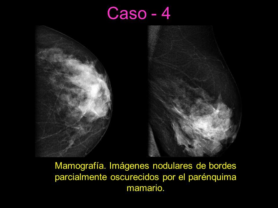 Caso - 4 Mamografía.