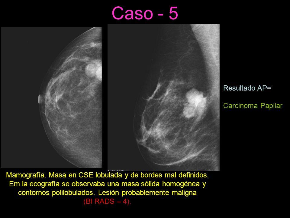 Caso - 5 Mamografía.Masa en CSE lobulada y de bordes mal definidos.
