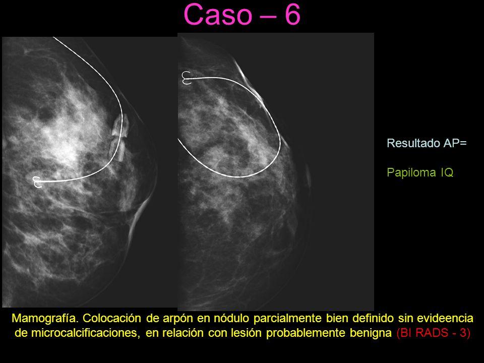 Caso – 6 Mamografía.