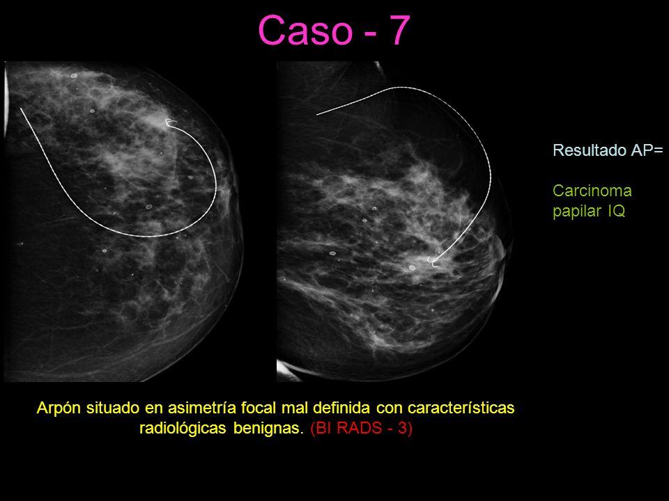 Caso - 7 Arpón situado en asimetría focal mal definida con características radiológicas benignas.
