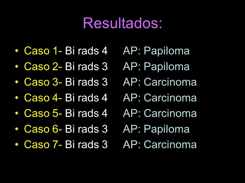 Resultados: Caso 1- Bi rads 4 AP: Papiloma Caso 2- Bi rads 3 AP: Papiloma Caso 3- Bi rads 3 AP: Carcinoma Caso 4- Bi rads 4 AP: Carcinoma Caso 5- Bi rads 4 AP: Carcinoma Caso 6- Bi rads 3 AP: Papiloma Caso 7- Bi rads 3 AP: Carcinoma