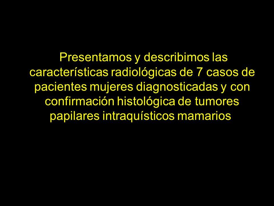 CASO - 1 Mamografía proyección craneocaudal mama izquierda.