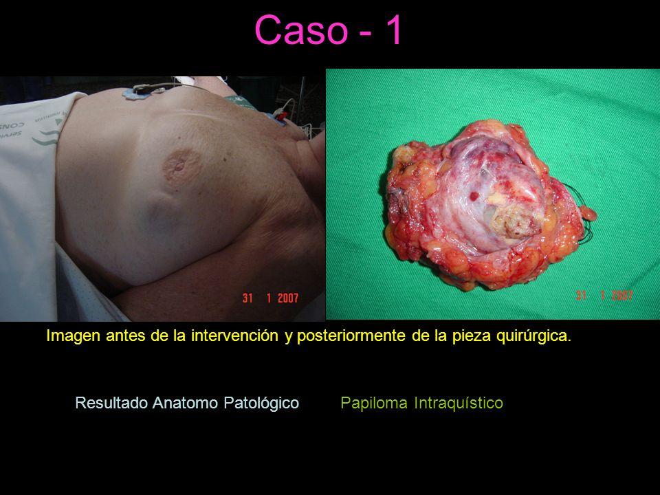 Caso - 1 Imagen antes de la intervención y posteriormente de la pieza quirúrgica.