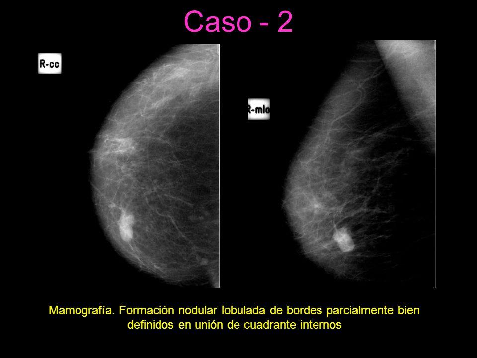 Caso - 2 Mamografía.