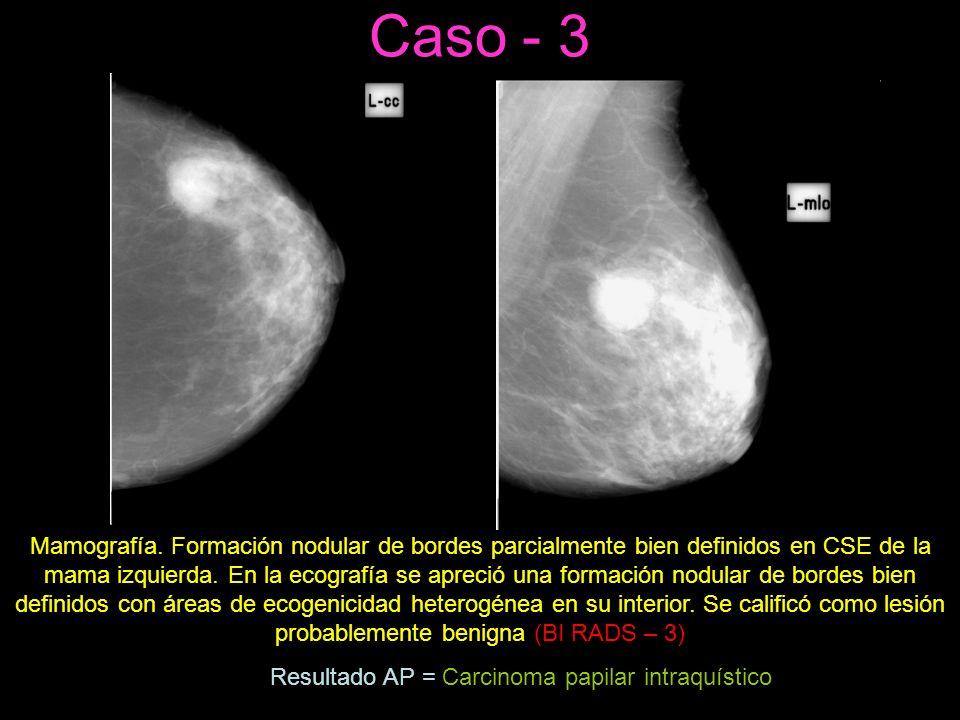 Caso - 3 Mamografía.
