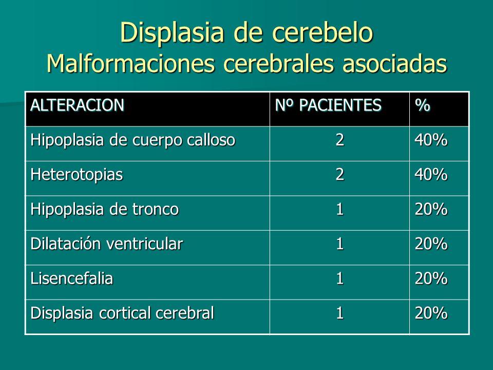 Displasia de cerebelo Malformaciones cerebrales asociadas ALTERACION Nº PACIENTES % Hipoplasia de cuerpo calloso 240% Heterotopias240% Hipoplasia de t