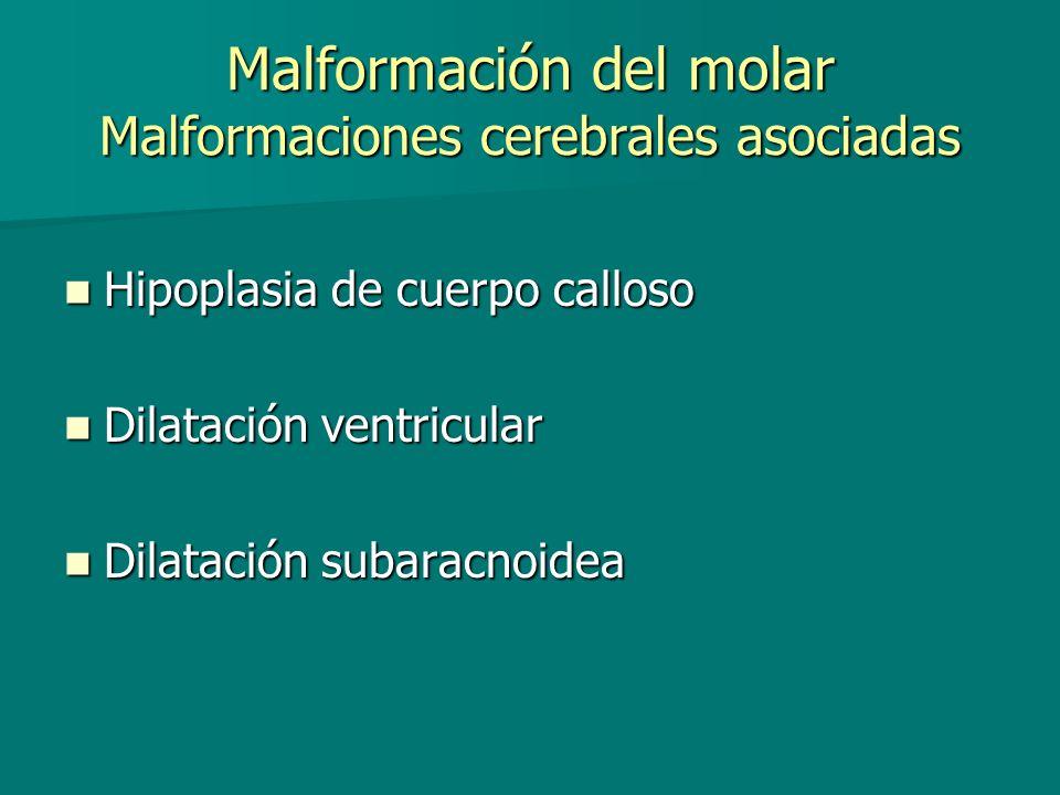 Malformación del molar Malformaciones cerebrales asociadas Hipoplasia de cuerpo calloso Hipoplasia de cuerpo calloso Dilatación ventricular Dilatación