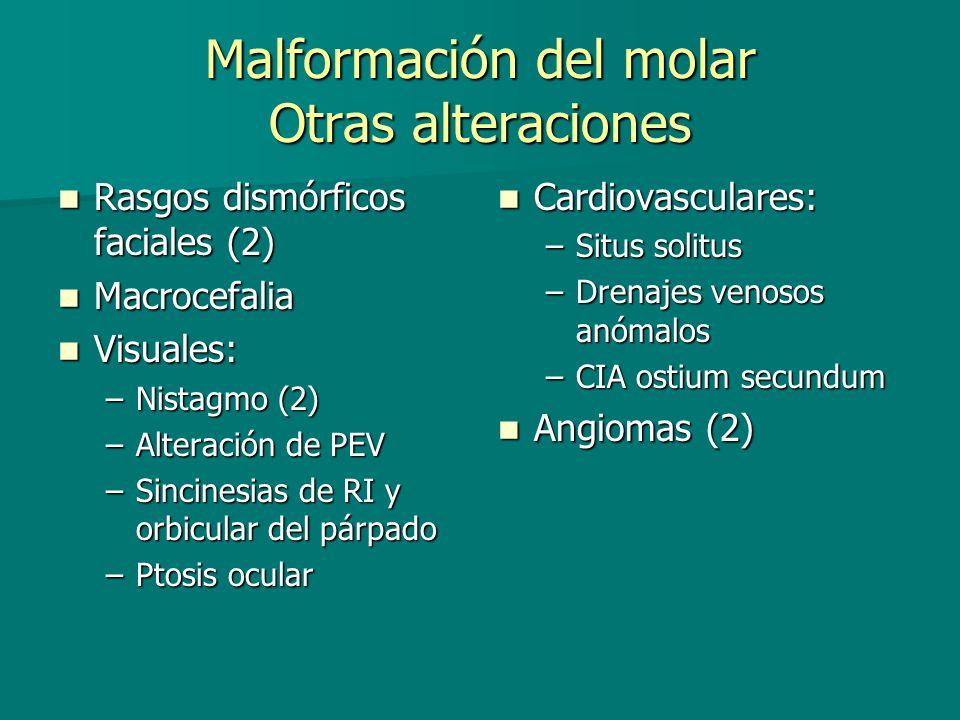Malformación del molar Otras alteraciones Rasgos dismórficos faciales (2) Rasgos dismórficos faciales (2) Macrocefalia Macrocefalia Visuales: Visuales