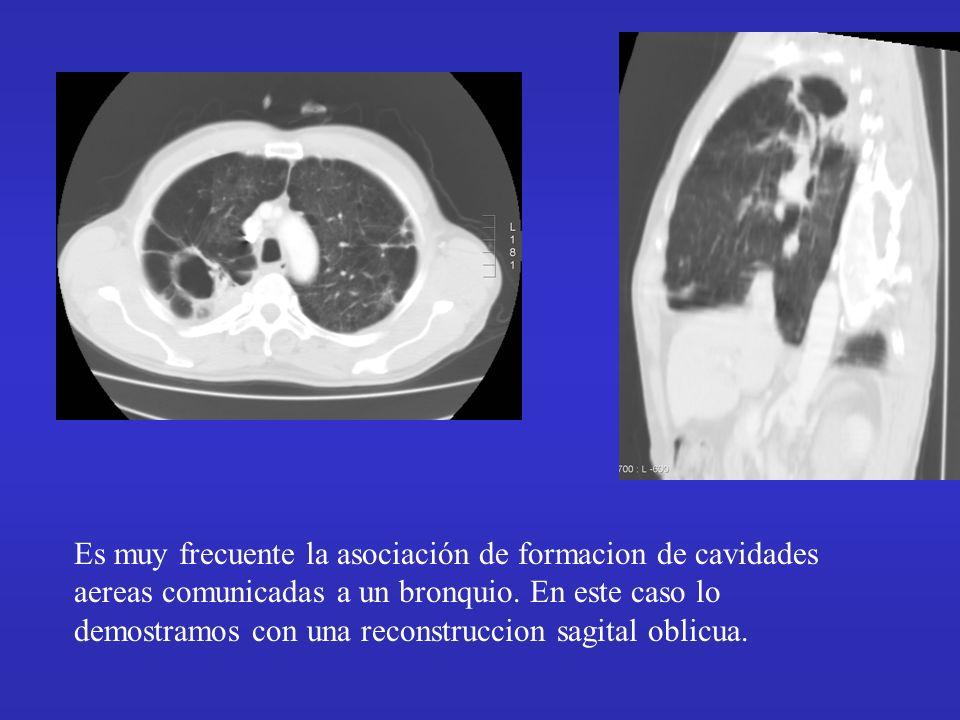 Es muy frecuente la asociación de formacion de cavidades aereas comunicadas a un bronquio.