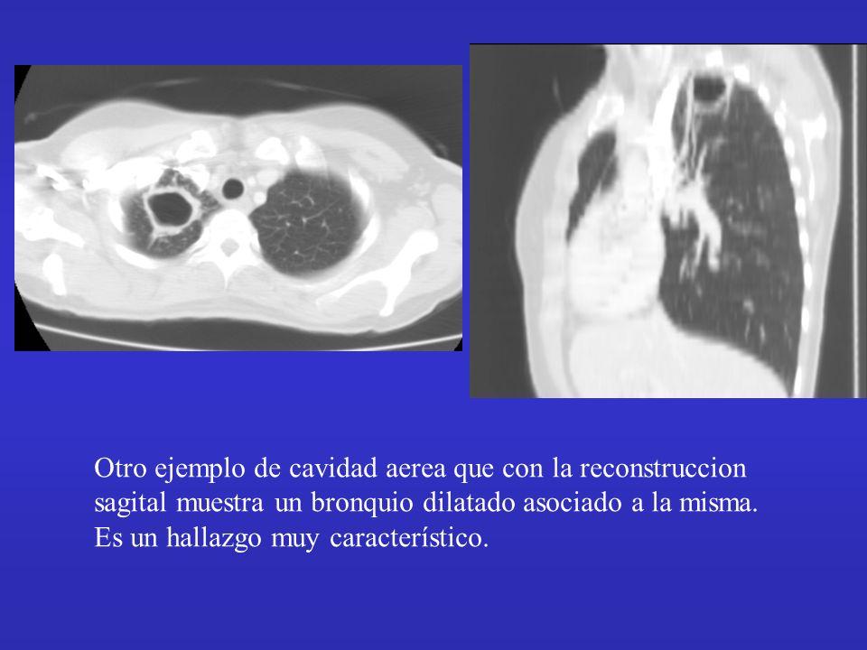Otro ejemplo de cavidad aerea que con la reconstruccion sagital muestra un bronquio dilatado asociado a la misma. Es un hallazgo muy característico.