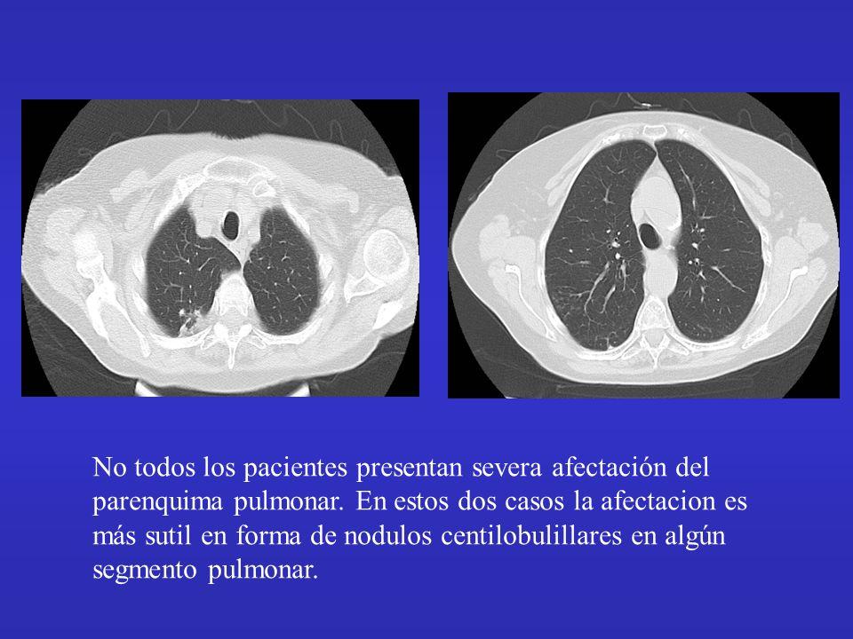 No todos los pacientes presentan severa afectación del parenquima pulmonar. En estos dos casos la afectacion es más sutil en forma de nodulos centilob