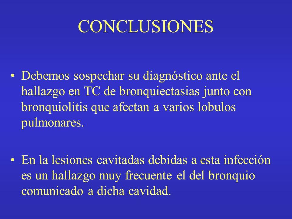 CONCLUSIONES Debemos sospechar su diagnóstico ante el hallazgo en TC de bronquiectasias junto con bronquiolitis que afectan a varios lobulos pulmonare