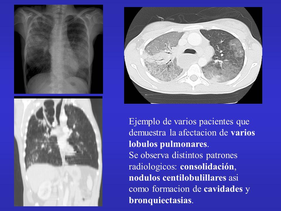 Ejemplo de varios pacientes que demuestra la afectacion de varios lobulos pulmonares. Se observa distintos patrones radiologicos: consolidación, nodul
