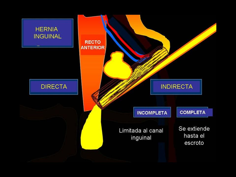 Hernia perineal Protrusión del contenido abdominal a través de los músculos y las fascias que forman el suelo de la pelvis.