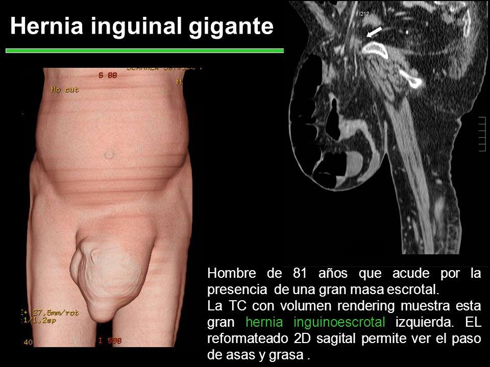 La TC muestra el paso de contenido intestinal, asas de ID,vasos y grasa Es una hernia inguinal completa estrangulada.