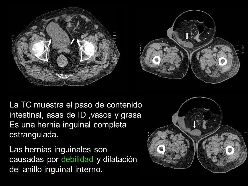 Hernia de Amyand Apéndice contenido en saco herniario (0.13% apendicitis) Se presenta como hernia incarcerada sin oclusión intestinal.