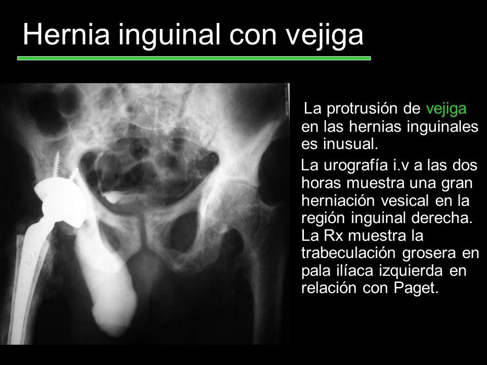 Herniacíon de la vejiga a través del canal inguinal.