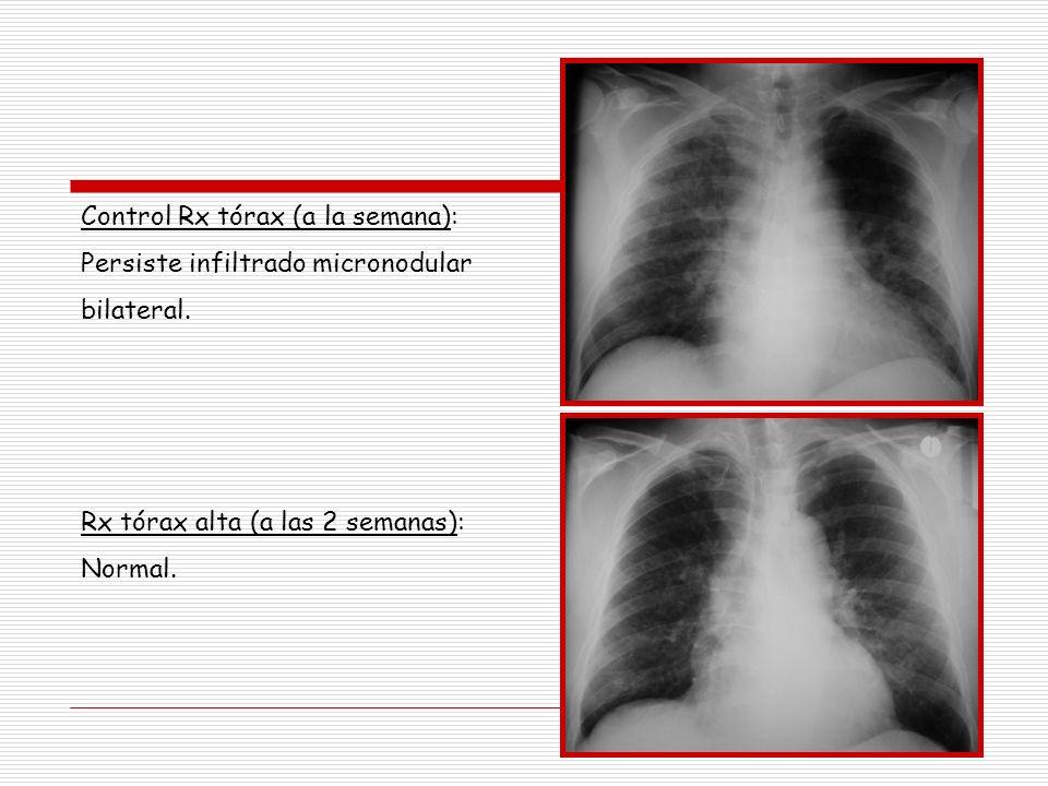 Control Rx tórax (a la semana): Persiste infiltrado micronodular bilateral. Rx tórax alta (a las 2 semanas): Normal.