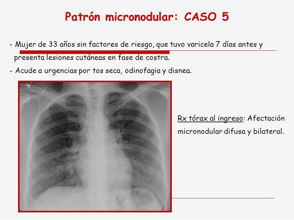 - Mujer de 33 años sin factores de riesgo, que tuvo varicela 7 días antes y presenta lesiones cutáneas en fase de costra. - Acude a urgencias por tos